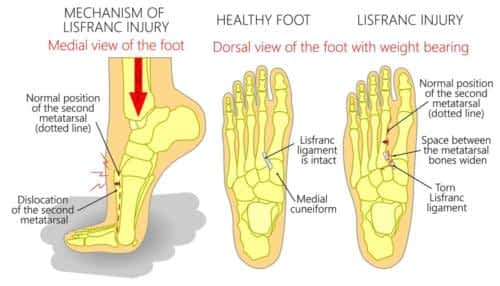 Lisfranc Fracture top of the foot pain