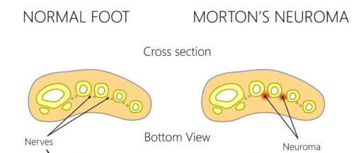 Morton's Neuroma ball of the foot pain
