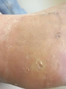 The Best Foot Fungus Treatment 2019: Podiatrist Shares SECRETS!