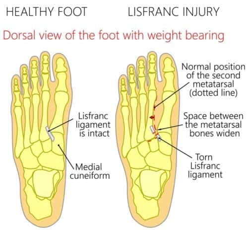 Lisfranc fracture pain top of foot
