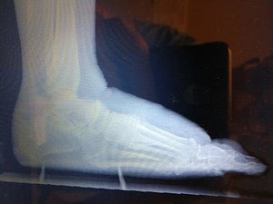 Swelling on Top of the foot spur and arthritis pain