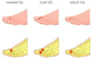 hammer toe deformity treatment