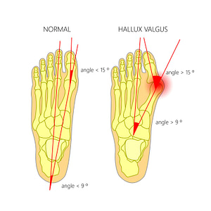 Bunion Causes Stages Treatment