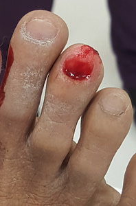 Ripped off right 3rd toe with bleeding and red spot