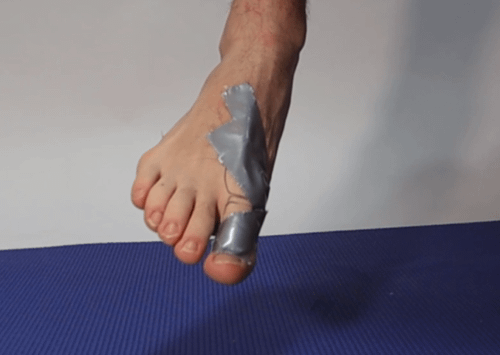 Turf Toe Best Treatment Taping