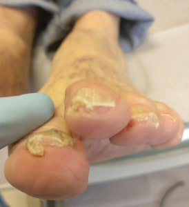 Toenail Fungus Nail Falling Off: Causes & Best Treatment 2019