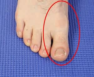 Foot Pain Behind Big Toe: Causes, Symptoms & Best Treatment 2020