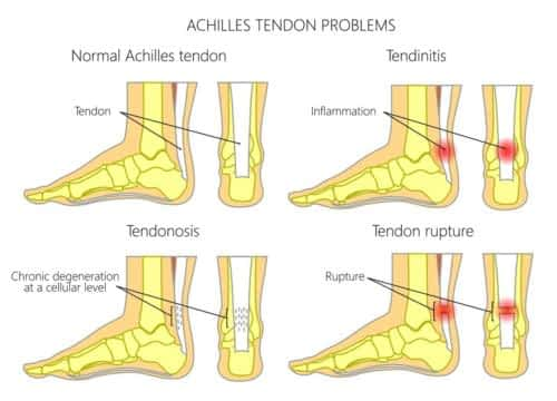 Achilles tendon pictures