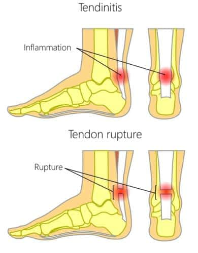 Achilles tendonitis vs achilles tendon rupture