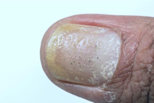 Toenail psoriasis and nail pitting. Fingernail psoriasis.