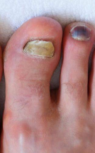 Yellow toenail fungus onychomycosis
