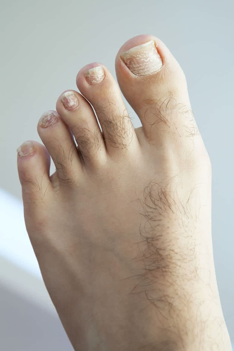 How To Fix Curved Toenails : curved, toenails, Curved, Toenail, Treatment, Complete, Ingrown, Guide!