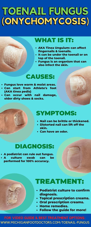 toenail fungus onychomycosis toenail infection