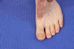 big toe joint pain turf toe big toe joint sprain