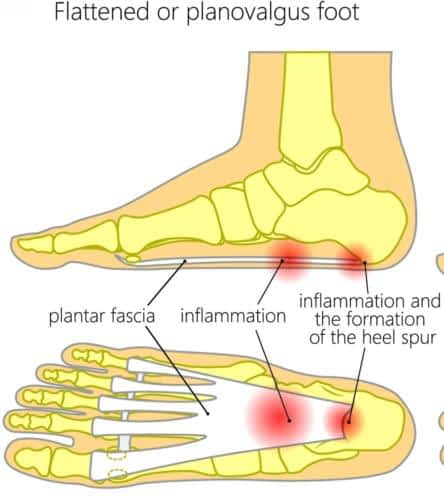 Flat foot heel pain plantar fasciitis