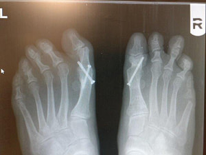 bilateral big toe joint fusion for halllux rigidus bunion