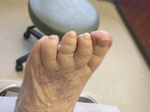 Toenail fungus home cure and home remedy