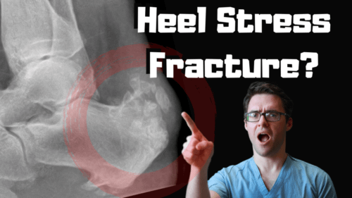 Calcaneal stress fracture Heel stress fracture treatment