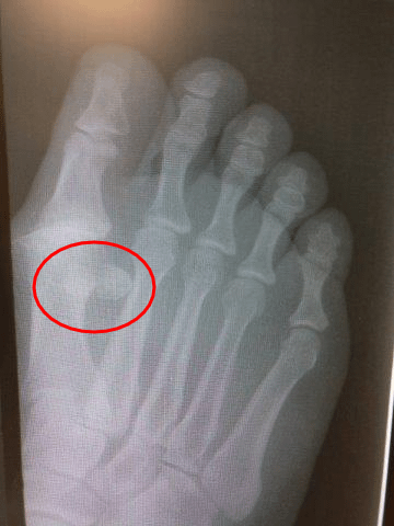 Bipartite sesamoid, fractured sesamoid treatment