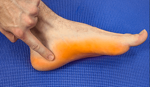 Hard Bump On The Bottom Of My Foot: Causes & Best Treatment 2019