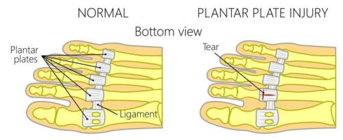 Plantar plate tear injury to the 2nd toe joint