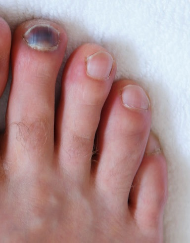 Subungual hematoma with blood and black toenail.