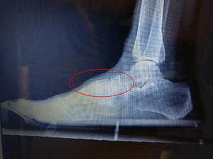 Bone spur on top of the middle of the foot lisfranc joint