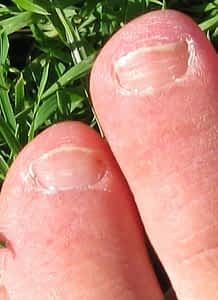 white lines leukonychia white lines on toenail