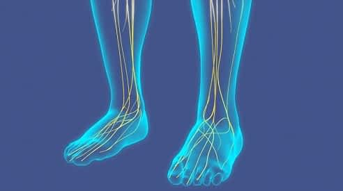 Superficial peroneal nerve compression top of the foot
