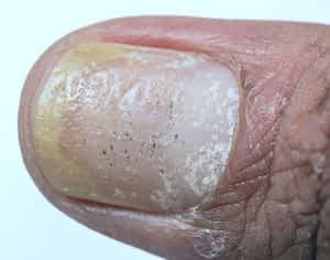 Trattamento della psoriasi dell'unghia del piede