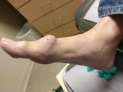 Gout in Big Toe, Foot, Ankle or Knee: Gouty Tophus