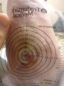 Wound Ulcer Measure Wound Care