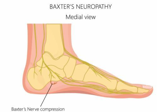 Plantar fasciitis nerve pain heel