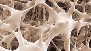 Metatarsal stress fracture microscopic anatomy