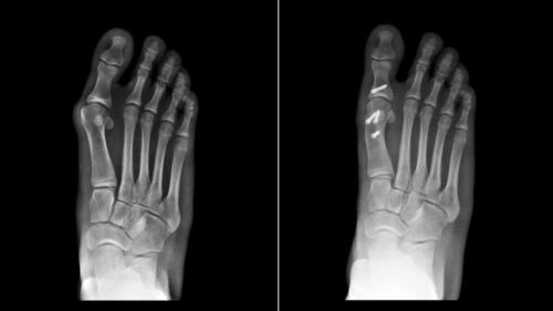 Bunion Surgery before and after Xray metatarsal osteotomy