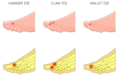3 types of hammer toe deformities