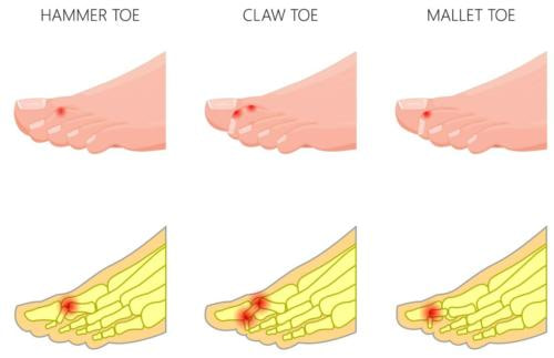 3 types of hammer toe deformities