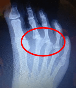 2nd toe predislocation syndrome and 2nd toe dislocation plantar plate rupture