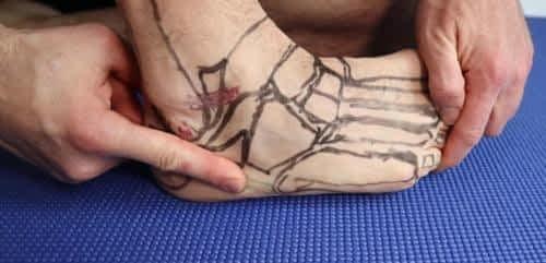 peroneus brevis insertional tendonitis
