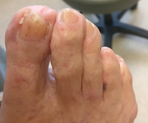 Keratin Granulations with white spots on toenails