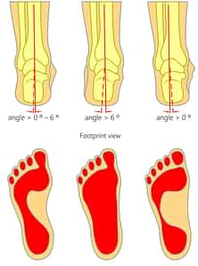pronated vs. supinated heel pain