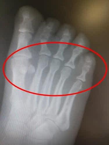 Metatarsalgia ball of the foot pain