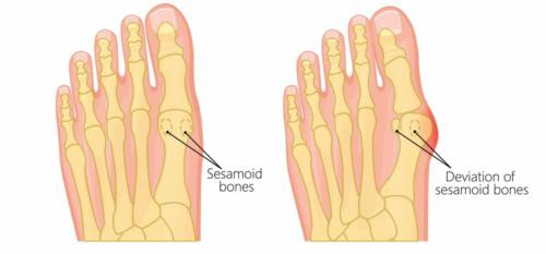 Bunion before and after sesamoid dislocation