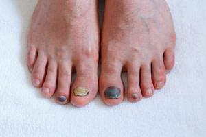 Both feet have big black toenails.