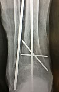 Kwire fixation ankle fracture.