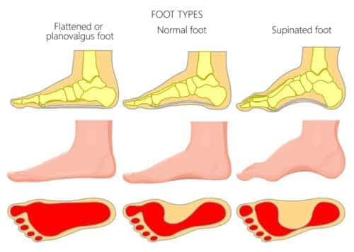 High arched foot vs. flat foot type heel pain