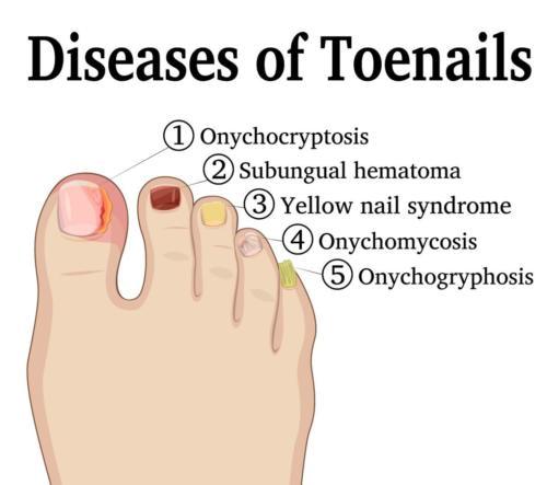 Toenail Disease Ingrown toenail, hematoma, yellow toenail, onygryphosis