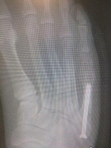 AP view percutaneous jones fracture reduction surgery recovery time