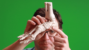 Navicular bone accessory navicular os naviculare