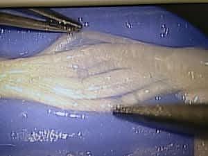 Morton Neuroma Morton Neuralgia Dissection anatomy treatment guide